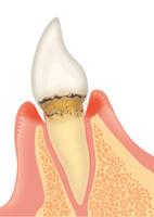 歯周病の進行具合と治療方法